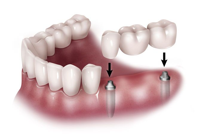 Puentes dentales en Mollet del Vallès