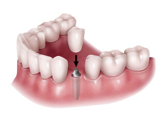 coronas dentales en Mollet del Vallès