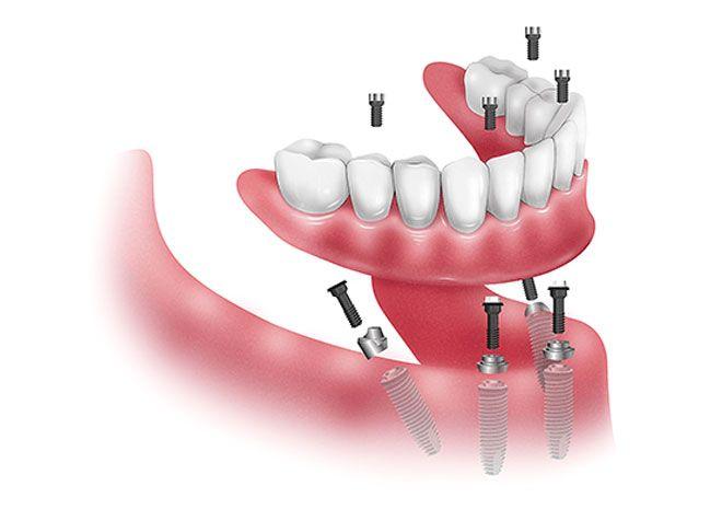 Implantes dentales  en Mollet del Vallès