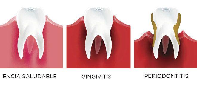 Enfermedades periodontales - Institut Maxilodental del Vallès