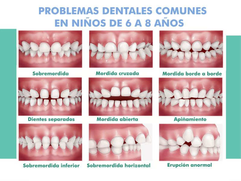 Problemas dentales en niños- Institut Maxil.lodental del Vallès